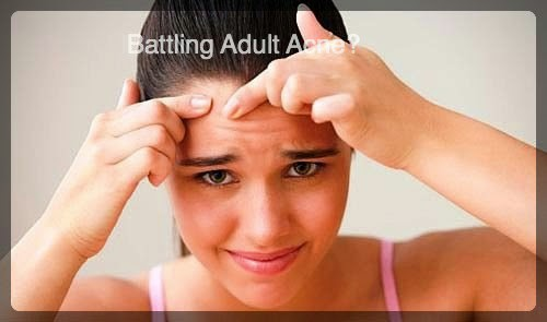 Adult Acne – NOT  A MYTH !!